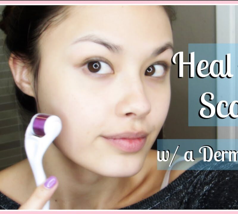 HOW TO TREAT ACNE SCARS & IMPROVE YOUR SKIN'S APPEARANCE